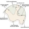 esquema prótesis capilar venus