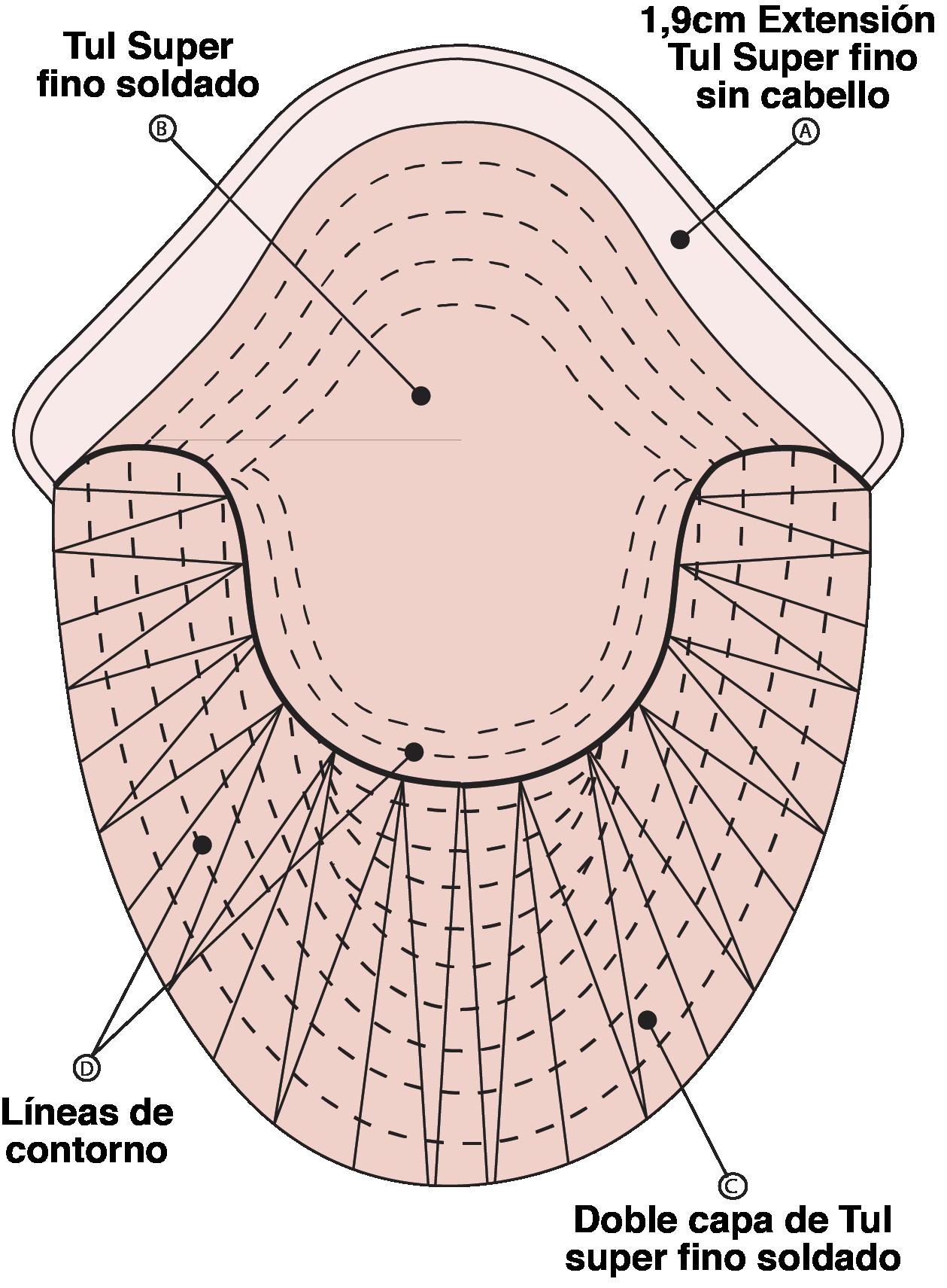 esquema prótesis capilar